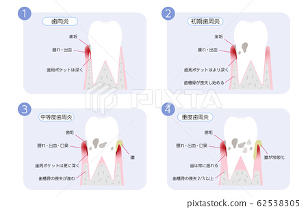 Periodontal disease progression illustration, 4 stages 62538305