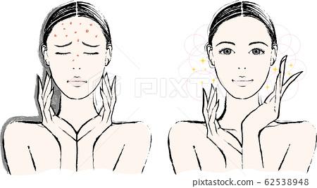 女性痤瘡前後 62538948