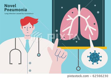 Doctor explaining Novel pneumonia 62566230