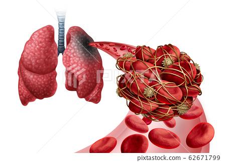 Pulmonary Embolism 62671799