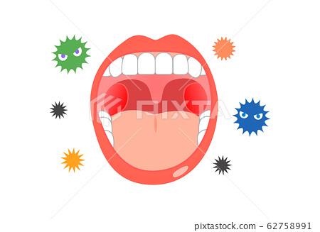 細菌和口腔感冒症狀 62758991