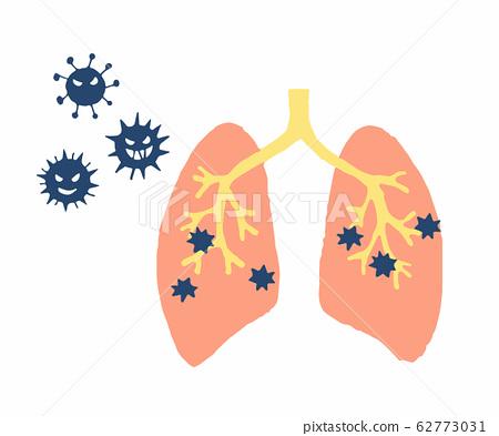 肺炎性肺結核 62773031