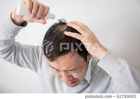 머리 숱으로 고민 중년 남성 62789003
