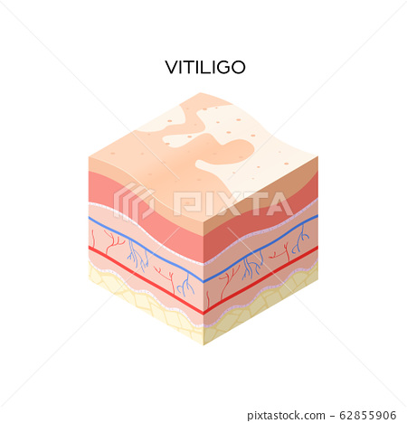 vitiligo skin cross-section of human skin layers structure skincare medical concept flat 62855906