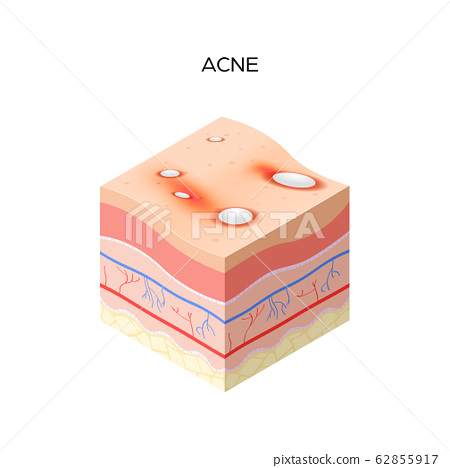 Acne vulgaris or pimple cross-section of human skin layers structure skincare medical concept flat 62855917