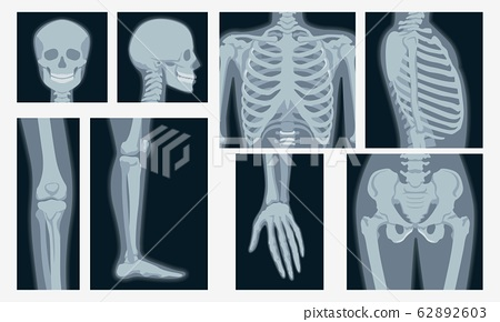 Different x-rays shot of human body part set vector flat illustration 62892603