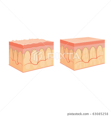 wrinkle and normal skin cross-section of human skin layers structure skincare medical concept flat 63085258