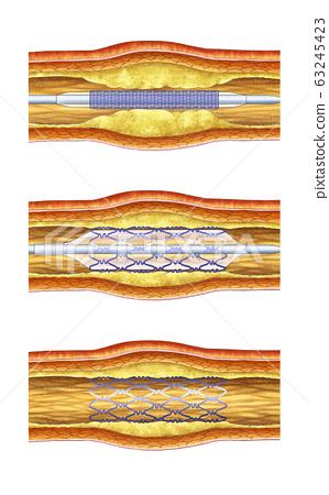 Anatomy of the vascular procedure 63245423