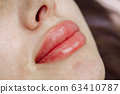 Lips after permanent makeup in beauty salon 63410787