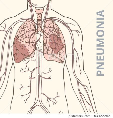 A schematic vector illustration of the human body with internal organs and an image of pneumonia of 63422262