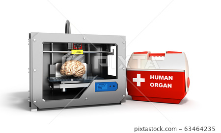 concept of transplantation process of creating 63464235