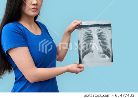 Young adult asian woman showing x-ray picture 63477432