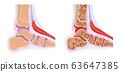 발의 해부도와 관절염 진행 63647385