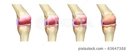 무릎의 해부도와 관절염 진행 63647388