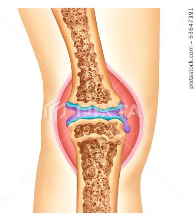 Anatomy and arthritis of the knee 63647391