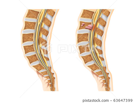 Spine and disc anatomy 63647399