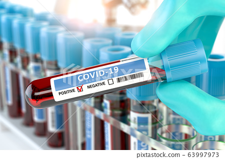 Coronavirus 2019 nCoV positive blood test. Blood 63997973