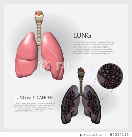 Lung with Detail and Lung Cancer Vector Illustration 64014118