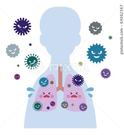 病毒感染的肺雄 64082567