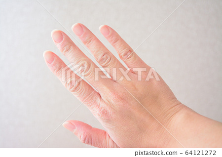 Woman's dry hands 64121272
