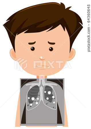 Boy with lung x-ray 64360648