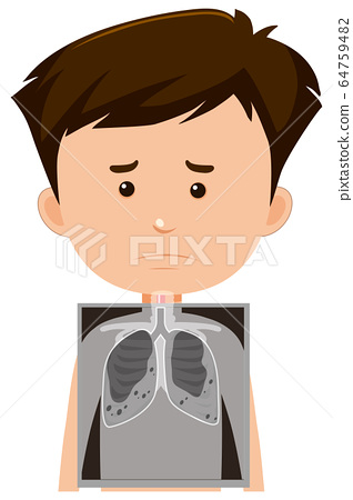 Male with lungs x-ray 64759482