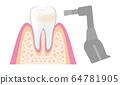 치과 의사의 일러스트 치과 PMTC 단계 dental_pmtc_step05 64781905