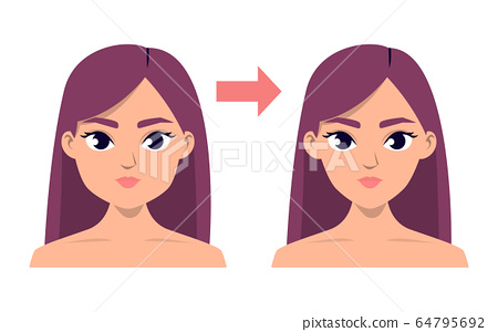 Face contour plastic surgery vector isolated 64795692