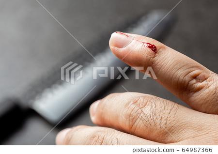 Bleeding finger by kitchen knife on black 64987366