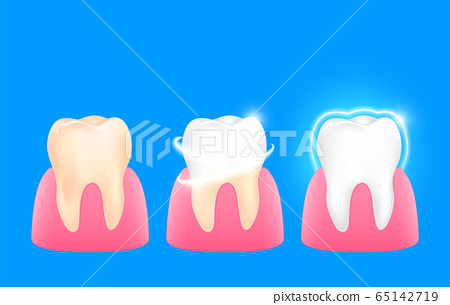 Set of  clean and dirty tooth. 65142719