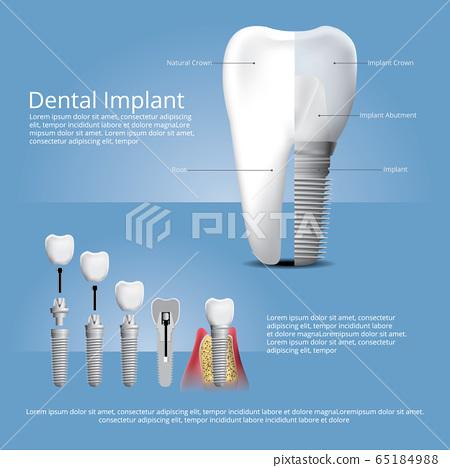 Human teeth and Dental implant Vector Illustration 65184988