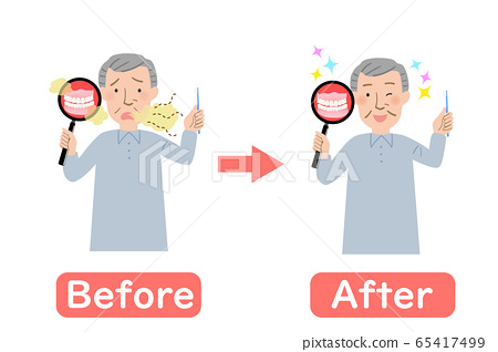 Grandpa's before-after, where the smell of false teeth is a concern 65417499
