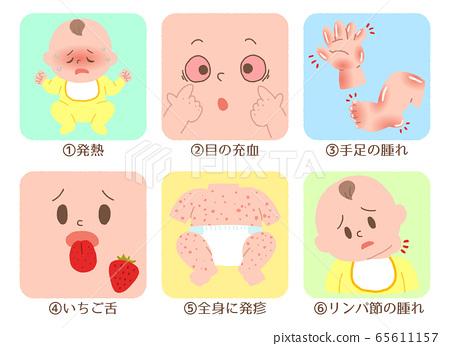嬰兒川崎病症狀集 65611157