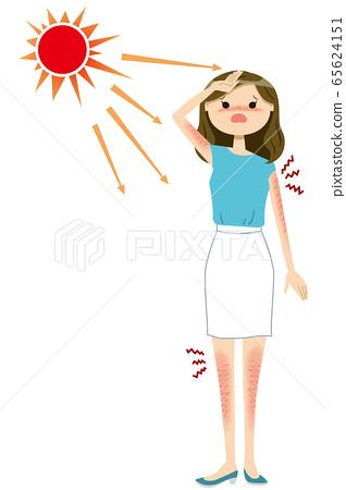 여성 선탠 여름 01 태양 65624151
