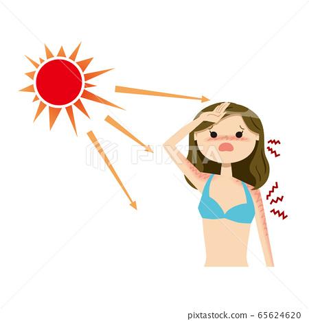 여성 선탠 수영복 01 태양 상반신 65624620