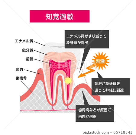 牙齒過敏的原因和機理截面矢量圖 65719343