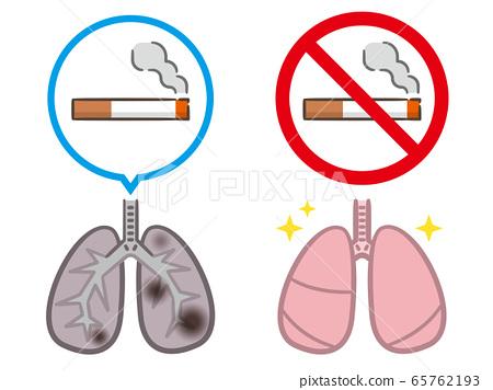 戒菸煙肺 65762193