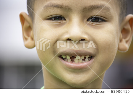 Baby teeth are just dropped in the mouth. 65900419