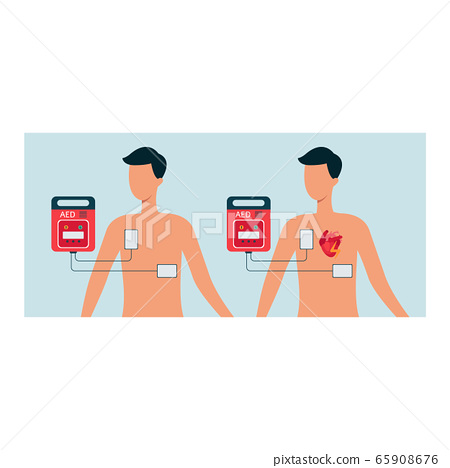 Automated external defibrillator with human and man body, aed concept for heart. 65908676