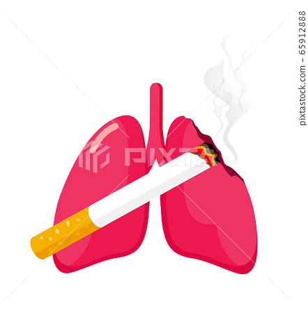 Damaged lung with cigarette. Stop smoking concept.  65912888