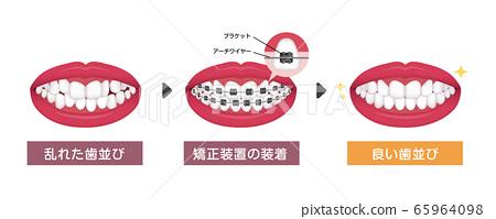 Orthodontics / orthodontics process vector illustration 65964098