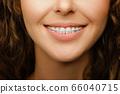 Closeup of orthodontic treatment for female 66040715