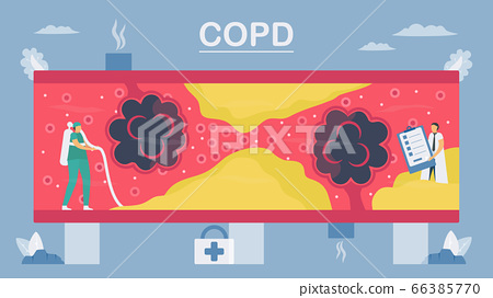 Chronic obstructive pulmonary disease or COPD. 66385770