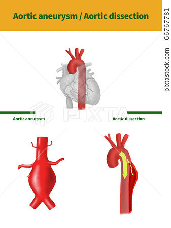主動脈瘤主動脈夾層醫學插圖 66767781