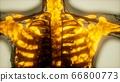 human skeleton bones scan glowing 66800773