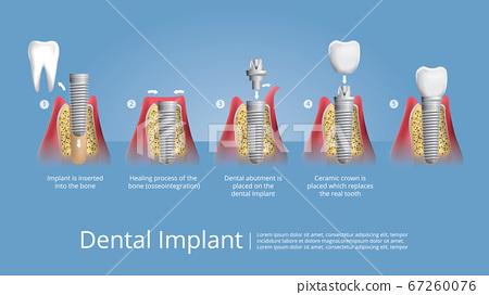 Human teeth and Dental implant Vector Illustration 67260076
