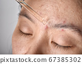 Acne or facial skin treatment, Dermatologist doctor dropping serum medicine to recover pimples 67385302
