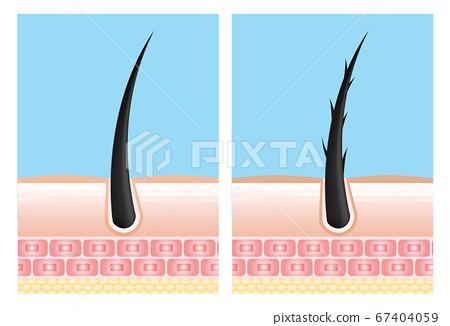 Hair care serum follicle diagnostics. Anatomy skin, medical human, epidermis layer, vector illustration design. 67404059