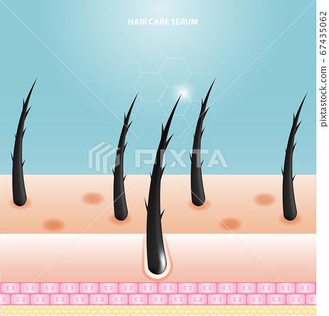 Hair care serum follicle diagnostics. Anatomy skin, medical human, epidermis layer, vector illustration design. 67435062