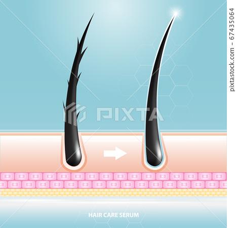 Hair care serum follicle diagnostics. Anatomy skin, medical human, epidermis layer, vector illustration design. 67435064